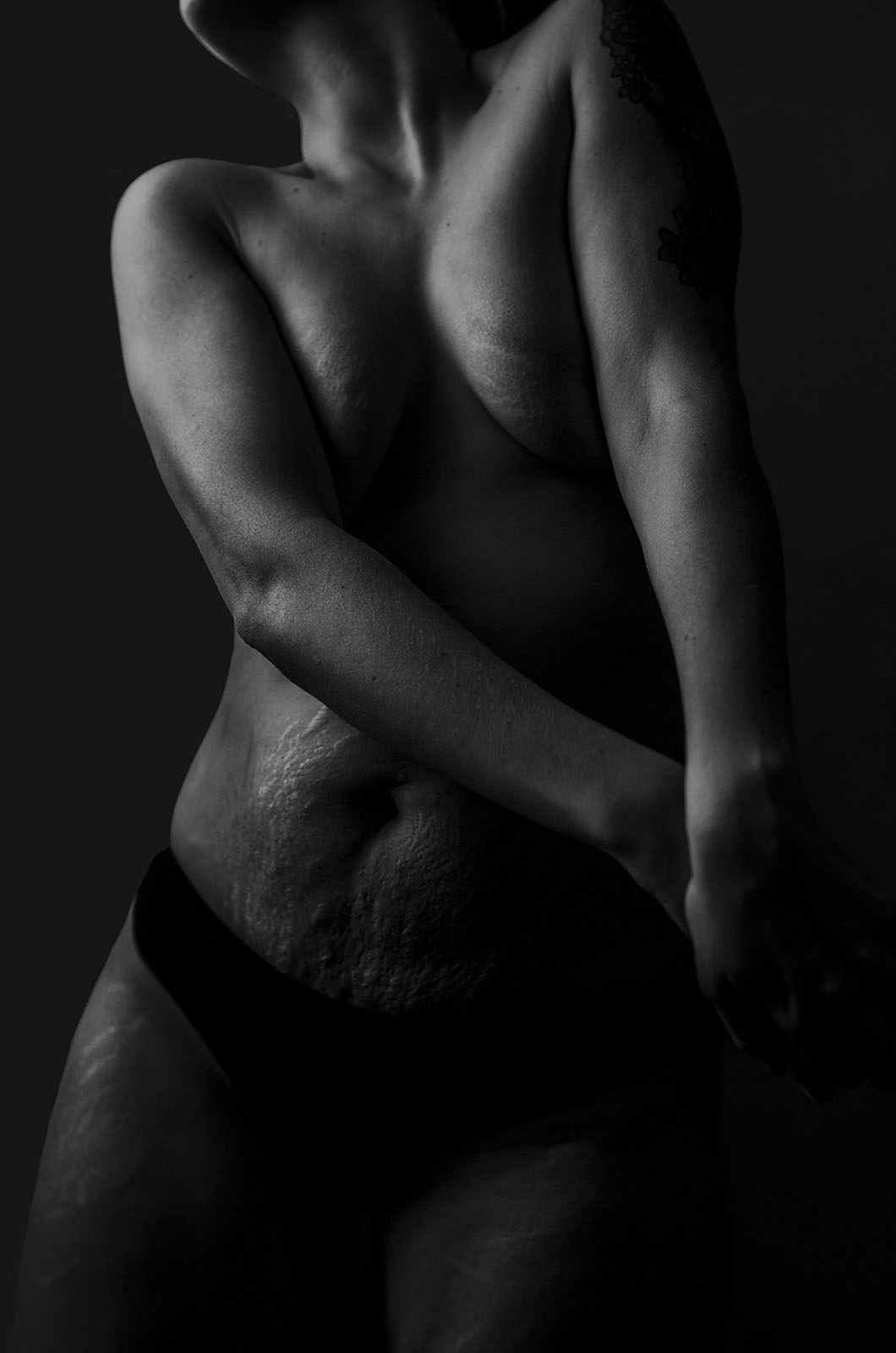 2019 Voice photo contest winner - a black and white image of a woman's stretch marks